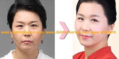 INFO] Penyebab dan Cara Menyelesaikan Masalah Kerutan Wajah | Korea ...